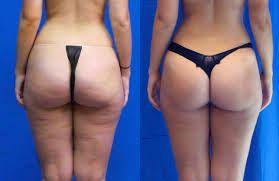 фото до и после массажа против целлюлита на ягодицах