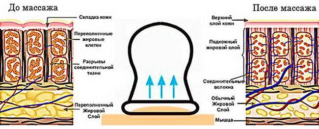 Рисунок, как действует баночный массаж от целлюлита