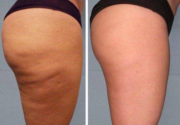 Результаты обертывания с меновазином, отзывы о похудении