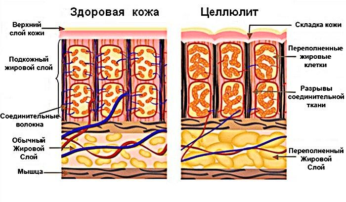Рисунок подкожных прослоек