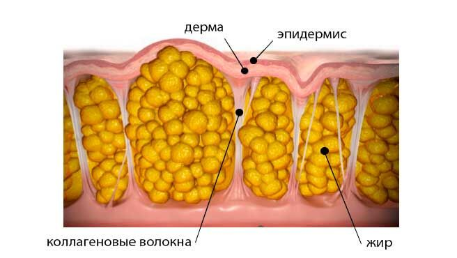 Жировая ткань, которая будет топиться при обертывании