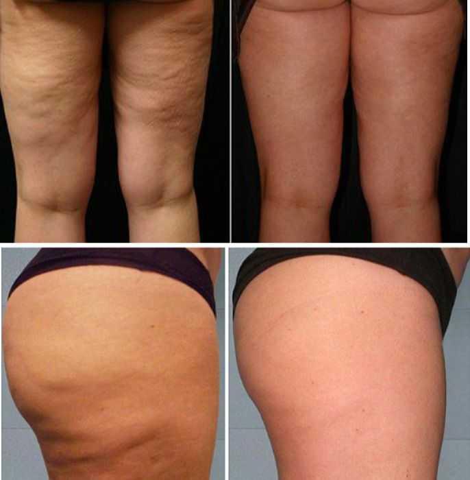 фото до и после массажа щеткой