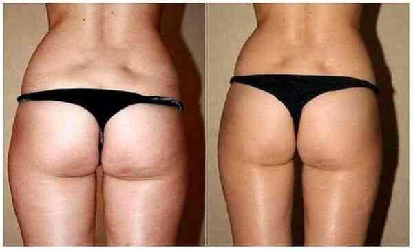Массаж от целлюлита фото до и после