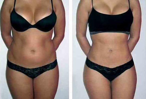Липолитики для похудения до и после